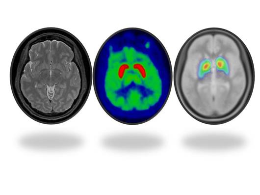 Brain imaging scans