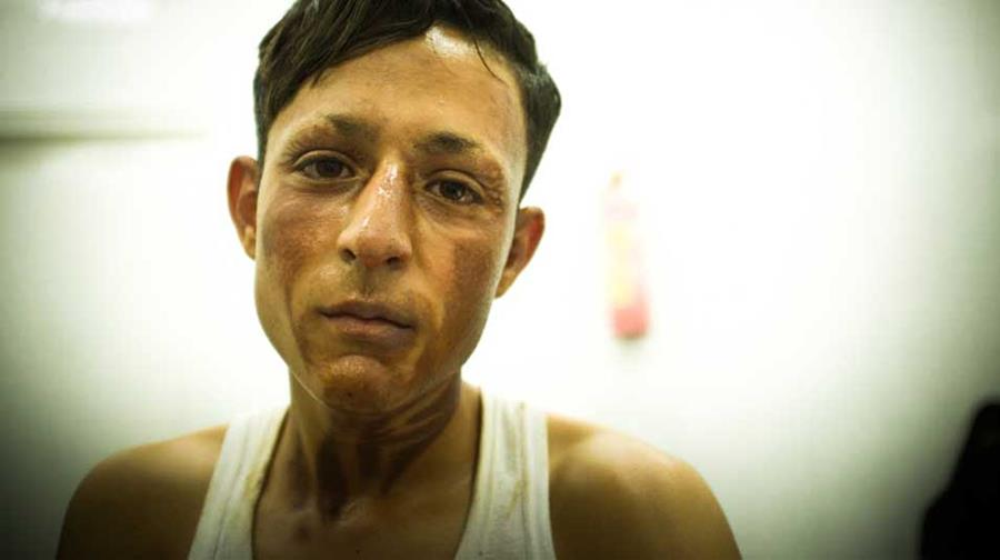 A Gazan teenager with burns to his face and neck.