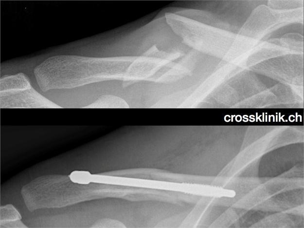 La quadruple fracture de la clavicule de Fabian Cancellara avant et après opération